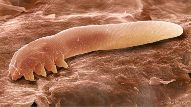 Os minúsculos ácaros que vivem em seu rosto